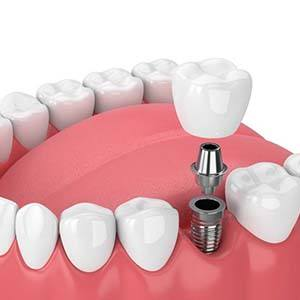 Dentist and patient reviewing dental insurance forms
